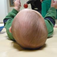 kreiva kūdikio galvytė; plagiocefalija; plokščios galvos sindromas