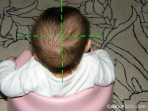kreiva kūdikio galvytė; plagiocefalija, nugulėta viena pusė