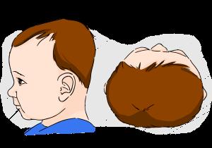 plokscias kudikio pakausis; plokscios galvos sindromas