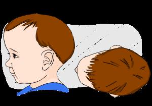 keista kudikio galvytes forma; kreiva kudikio galvyte