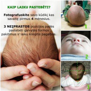 plagiocefalija; kaukoles skliauto deformacijos