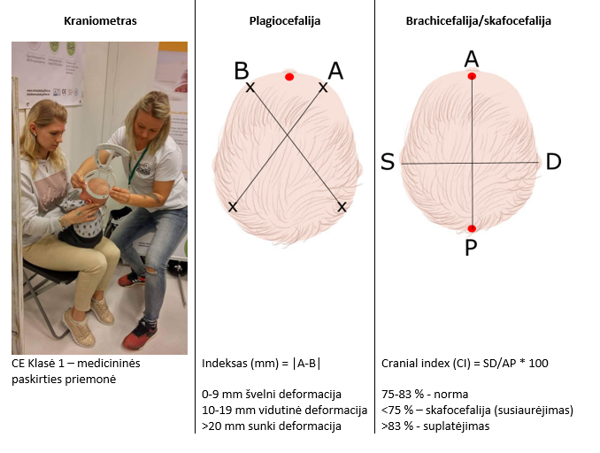 plagiocefalija; kraniometras
